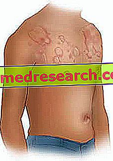 खाद्य एलर्जी: कारण और लक्षण