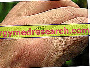 Vabzdžių įkandimai: priežastys ir simptomai