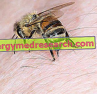 मधुमक्खी पंचर - क्या करें?  देखभाल और रोकथाम