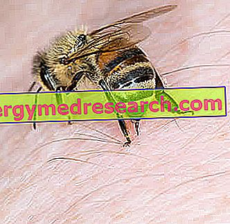 Bee Sting - Τι να κάνετε;  Φροντίδα και Πρόληψη