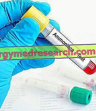amoniakas nuo hipertenzijos)