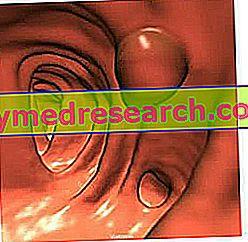 Carcino Embryonic Antigen - CEA