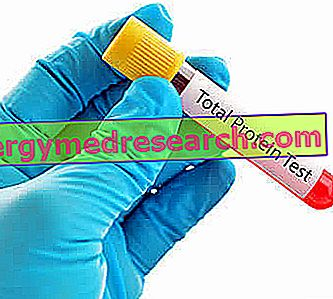 proteinemia