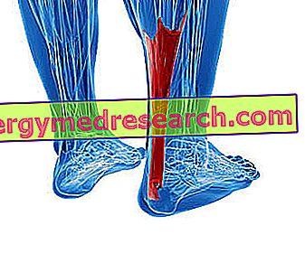 pierde greutatea cu tendonita lui ahile arzător de grăsime perfect