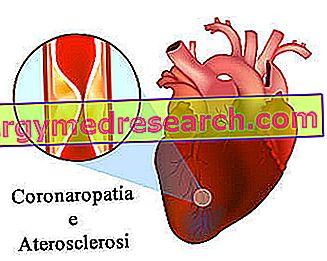 pierderea în greutate arteră coronariană)