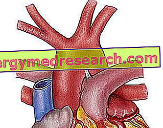 Aortic Arch oleh A.Griguolo