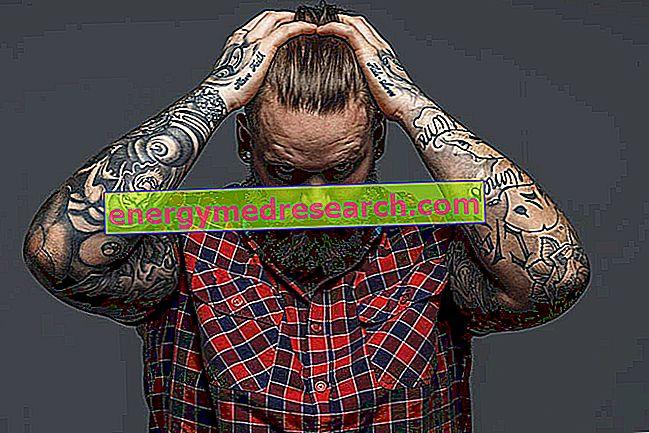Tetovējuma noņemšana: jāapsver faktori