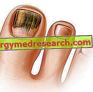 Ką sukelia onichomikozė?