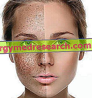 hipertenzija odos spalva