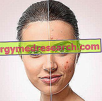 Kosmetinis gydymas riebiai odai