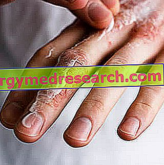 Eczema mâinilor