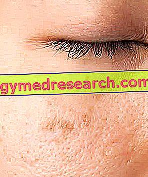 Точки върху кожата на лицето
