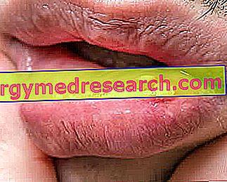 Gel pentru afte bucale Anaftin 12%, 8 ml | clinicaarmonie.ro