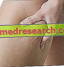 Cellulite: qu'est-ce que c'est et pourquoi il apparaît