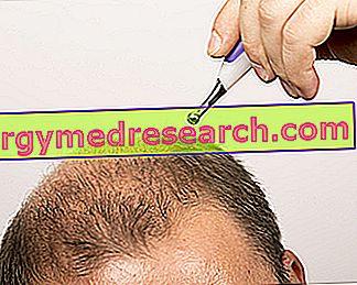 脱毛症の治療