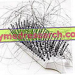 Alopecia Androgenetik Perempuan