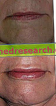Lūpu pildviela - lūpu plankumi un pildījumu veidi