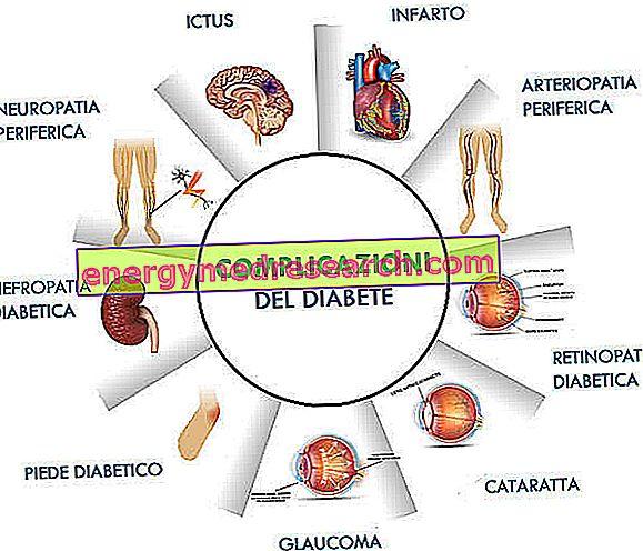 diabetikams nuo hipertenzijos