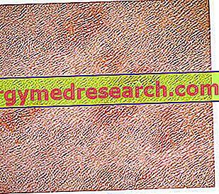 Pityriocation Rosea của Gibert: Chẩn đoán và trị liệu