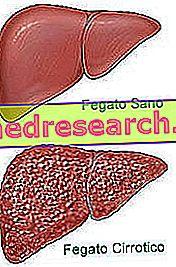 Diēta aknu cirozei