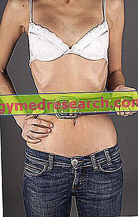 Anorexia Nervosa - Anorexia