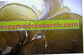 Brūnās aļģes