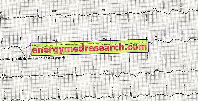 kaip nustatyti hipertenziją pagal EKG)