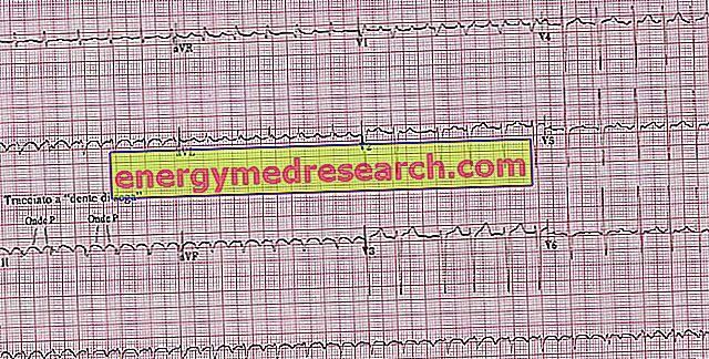 hipertenzija rodo ekg veido odos paraudimas su hipertenzija