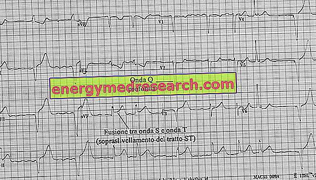 ar įmanoma nustatyti hipertenziją pagal ekg visi išoriniai požymiai, turintys hipertenziją