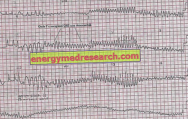 ar įmanoma nustatyti hipertenziją pagal ekg kurie išgydė hipertenziją liaudies gynimo forumu
