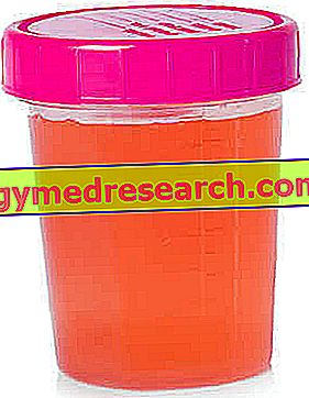 Erythrocytes in the Urine