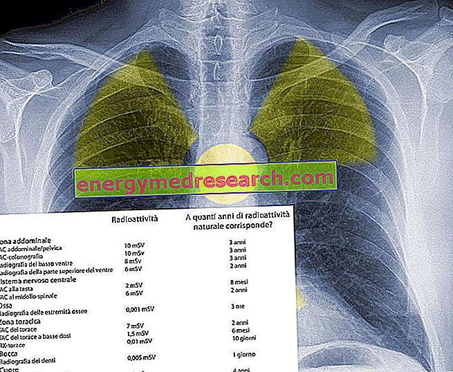 ¿Cuánta radiación hace una radiografía de tórax o una tomografía computarizada torácica?