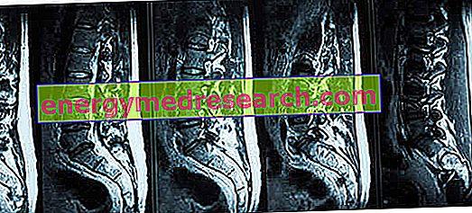 Sakrālā muguras magnētiskā rezonanse