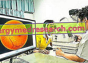 Fluorangiography