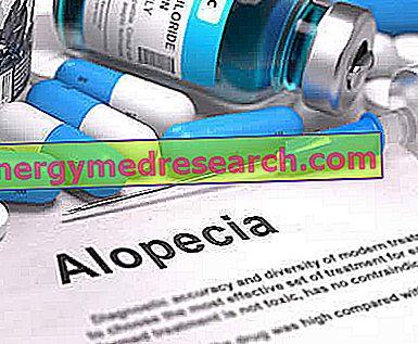 أدوية لعلاج داء الثعلبة