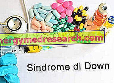 Thuốc chữa hội chứng Down