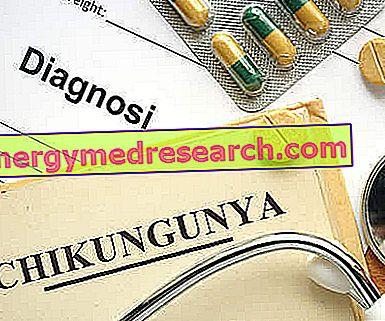 Medicamentos para curar el chikungunya.