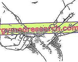 Alprostadil - Caverject