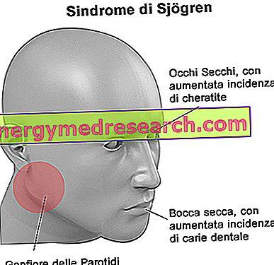 Ubat untuk rawatan Sindrom Sjögren