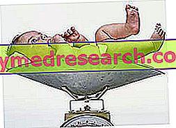 Makrosomik - Makrosomal yang baru lahir - Makrosomia