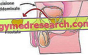 prostatektomijas