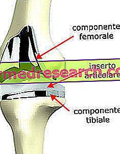 Протез коліна