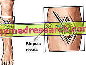 Knochenbiopsie