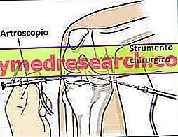 La artroscopia