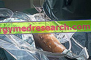 Artroskopie kolenního kloubu A.Griguolo
