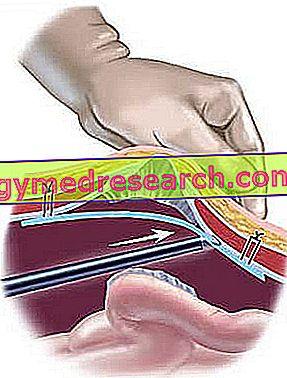Inguinálne a abdominálne hernie - Mini-invazívne terapeutické riešenia