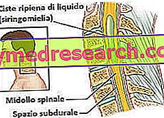 laminectomie
