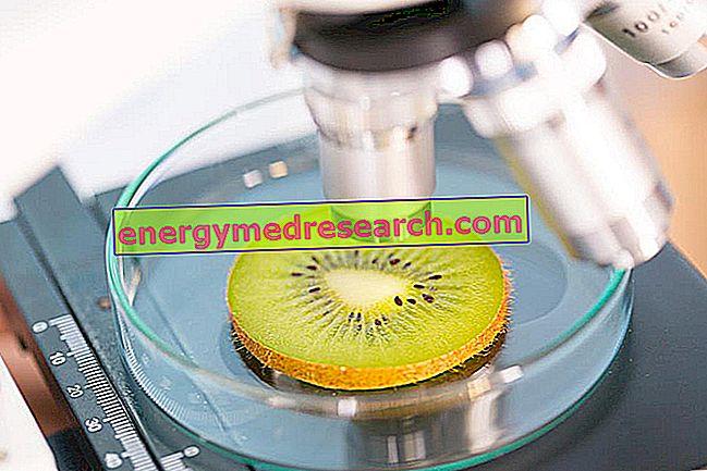 Μολύνσεις τροφίμων: ιοί, βακτήρια ή τοξίνες;