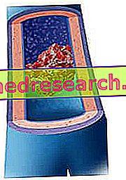 Tromb in tromboza