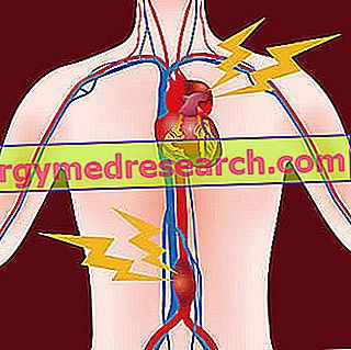 Aneurizma aorte - aneurizma aorte z A.Griguolo